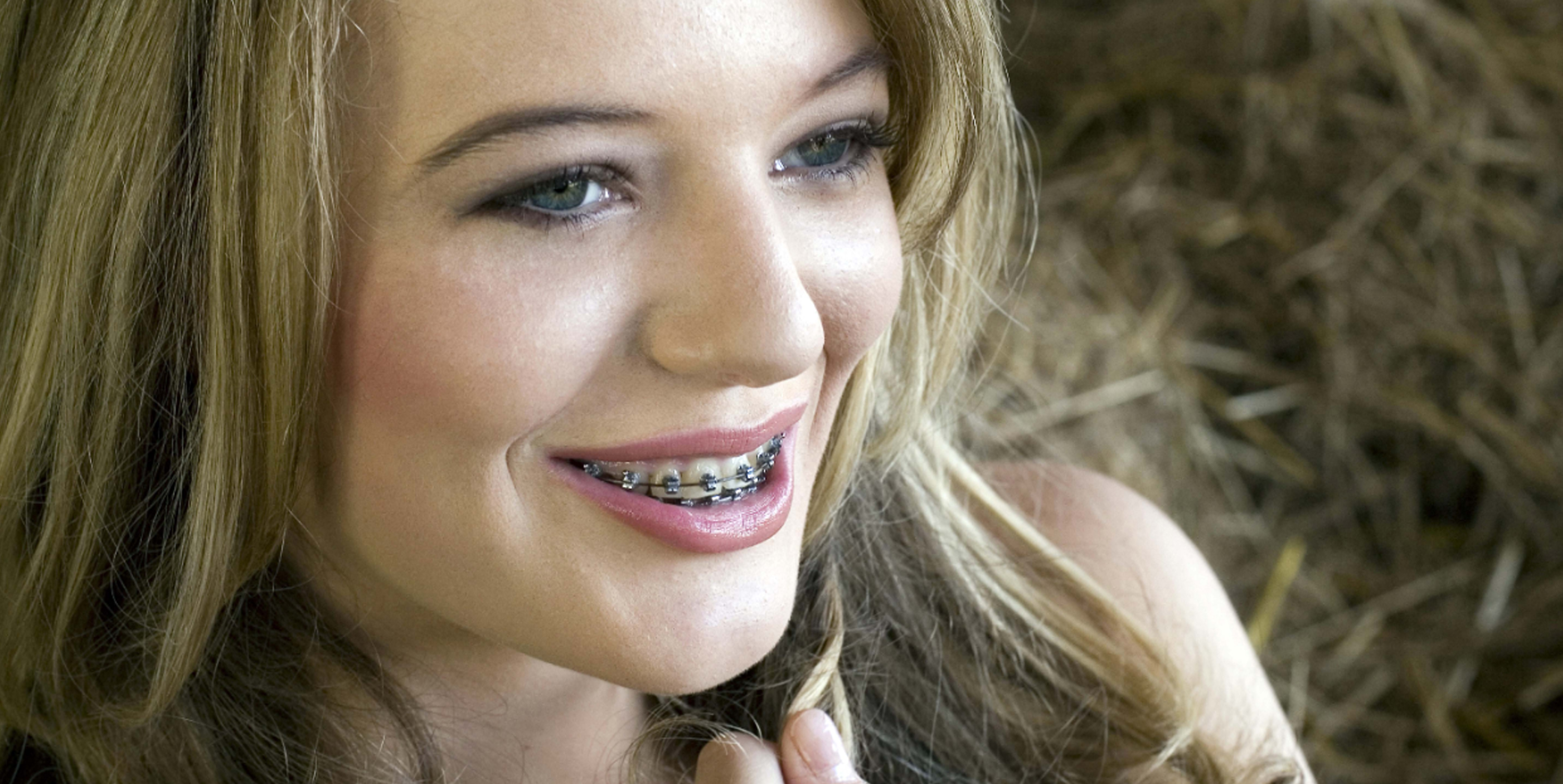 Metal Braces In Sugar Land Houston