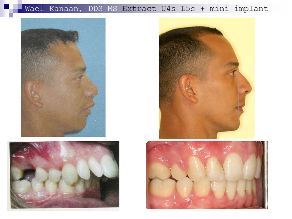 overbite correction without surgery