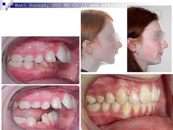 overbite correction