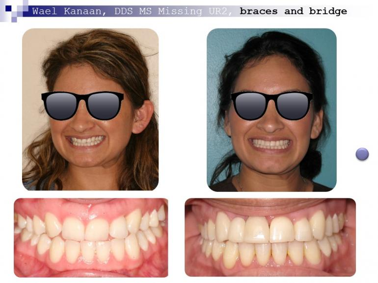 complex orthodontic case 1