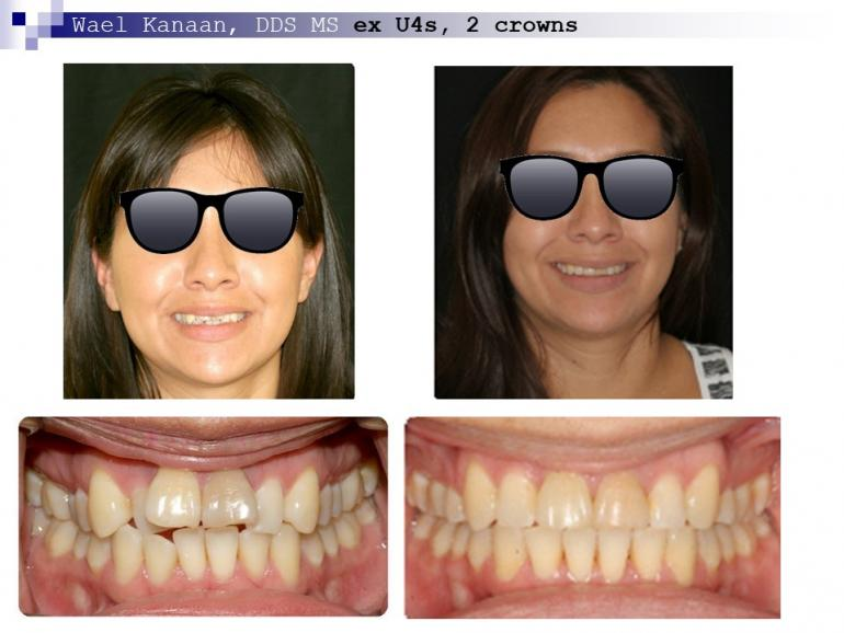 complex orthodontic case 3