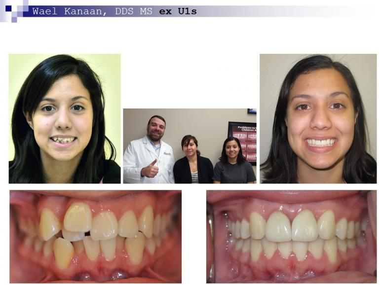 complex orthodontic case 5