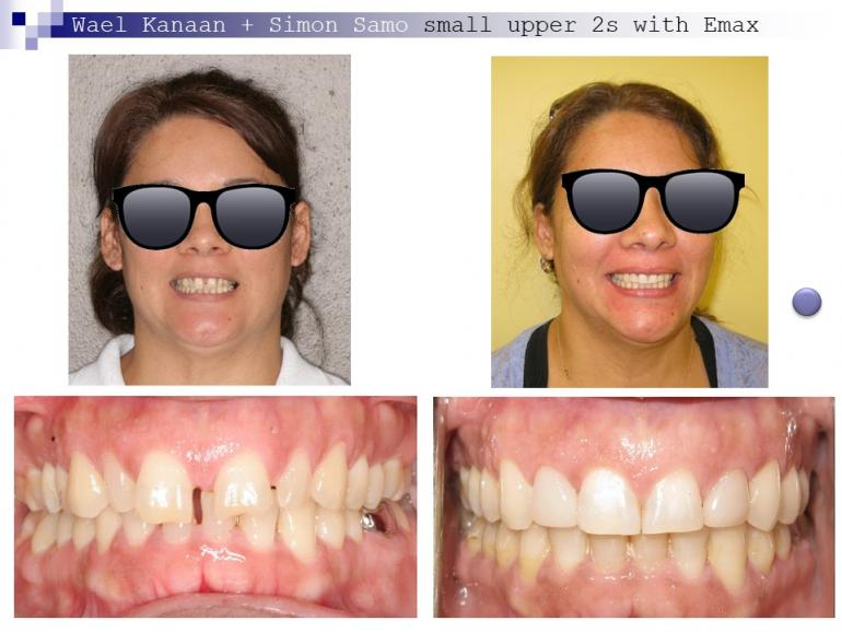 complex orthodontic case 4