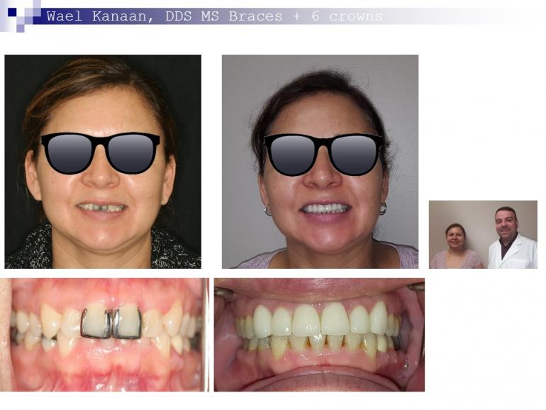 complex orthodontic case 8