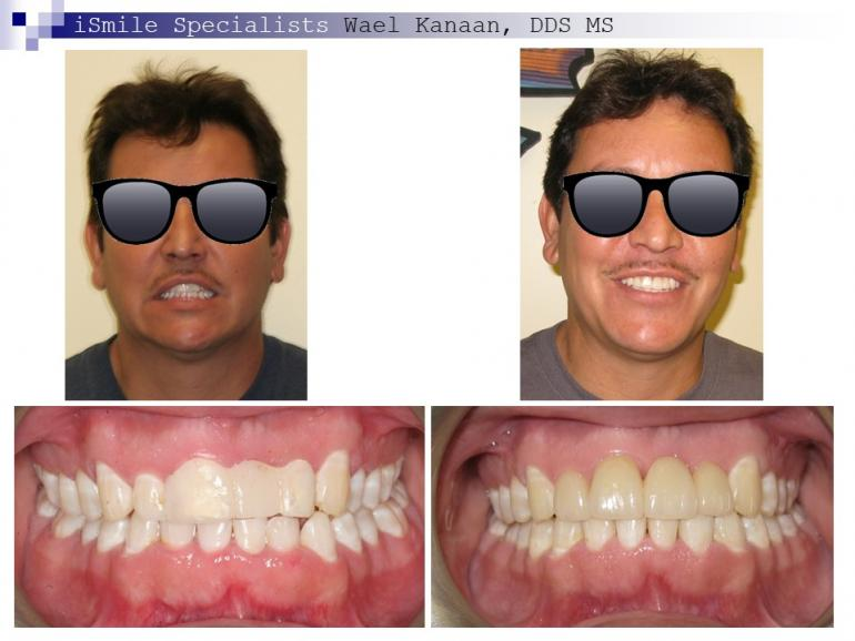 complex orthodontic case 9