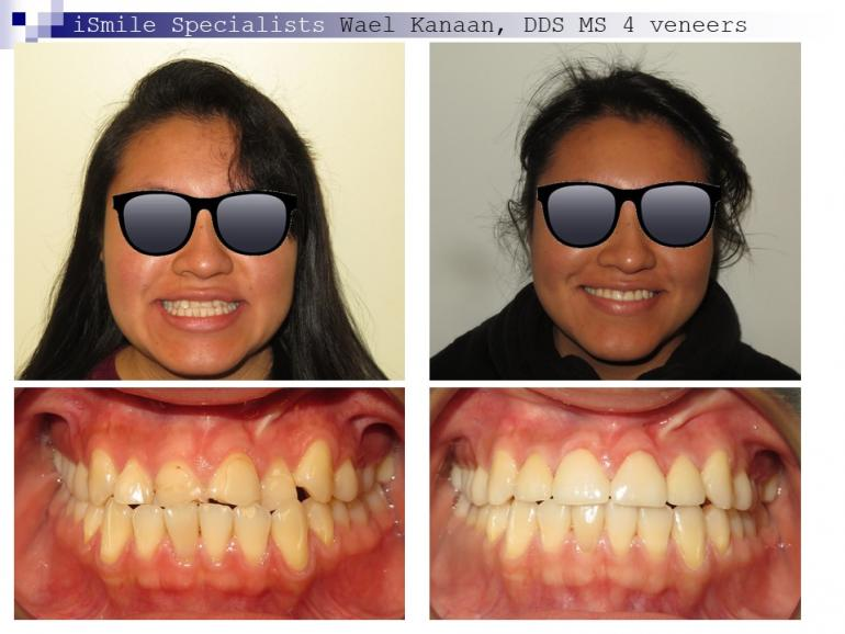 complex orthodontic case 10