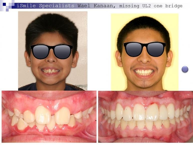 complex orthodontic case 11