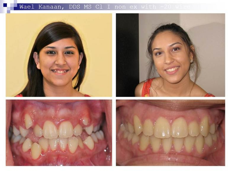 orthodontic case 1