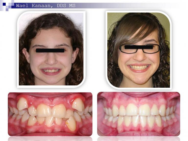 orthodontic case before and after