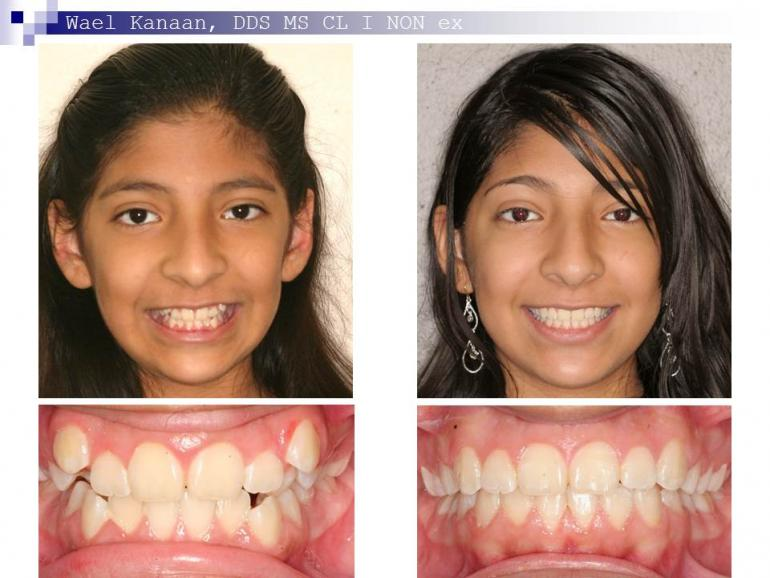 orthodontic case