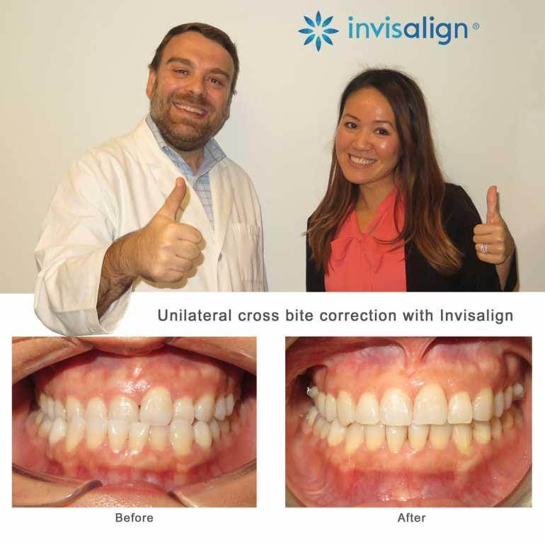 Invisalign Houston Center | Orthodontist and Dentist in