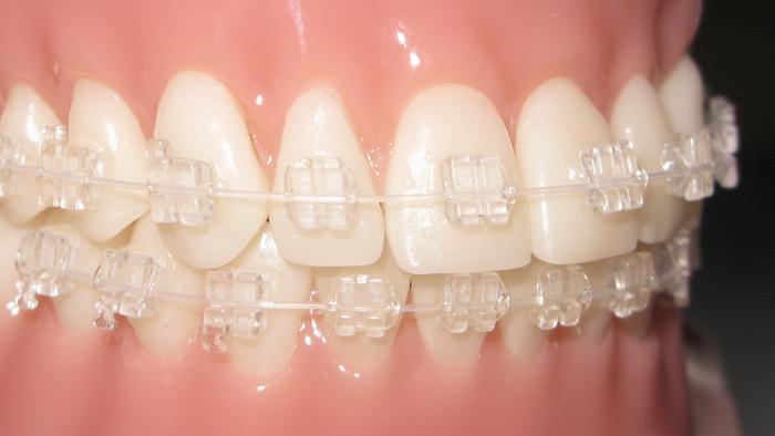 Phantom clear braces with clear wires in Houston and Sugar Land