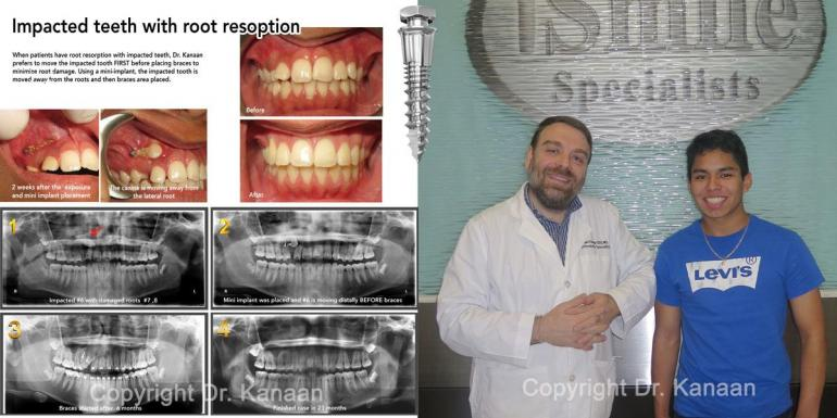 Impacted canine tooth treatment with mini implants Houston Sugar Land