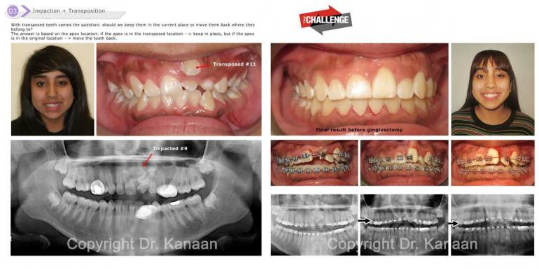 Impacted central Incisor tooth surgery Houston Sugar Land