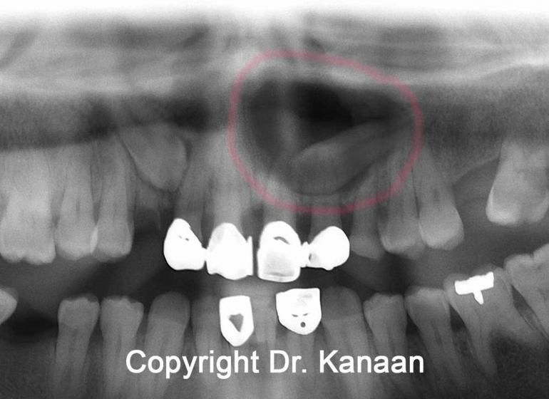 Cyst Impacted Tooth Upper Jaw